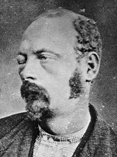 Coleman Younger, after the disastrous Northfield, Minnesota raid.